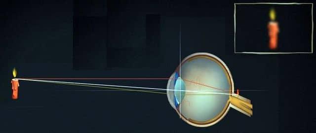 причина дальнозоркости - уменьшенное глазное яблоко