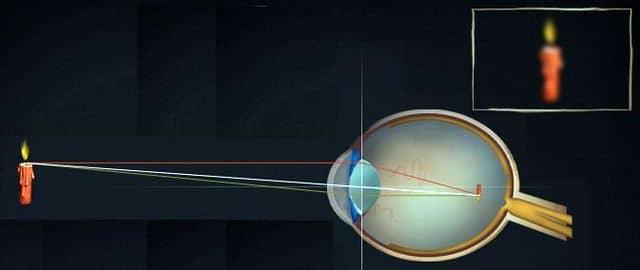 близорукость - результат увеличенного глазного яблока