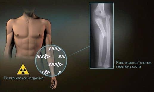 исследование организма с помощью рентгеновского излучения